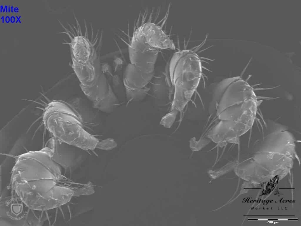 Varroa mite 100x magnification