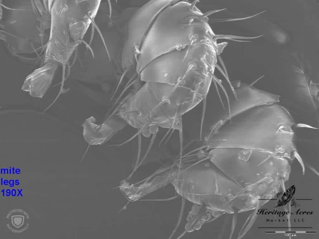 Varroa mite legs 150x magnification