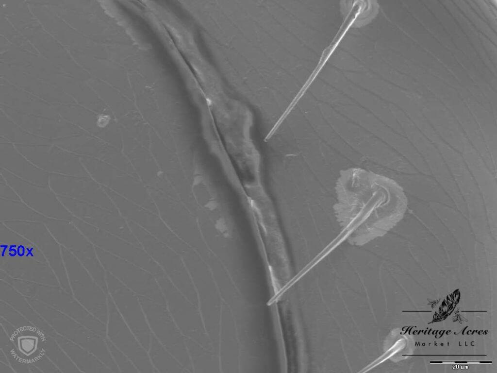 Varroa Mite 750x magnification